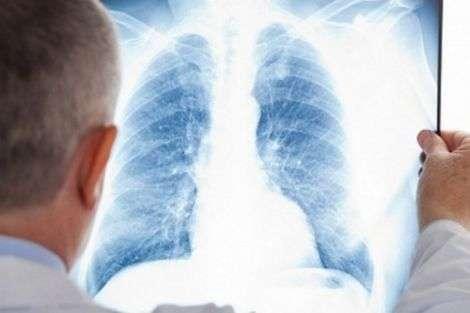 Причини розвитку раку легенів
