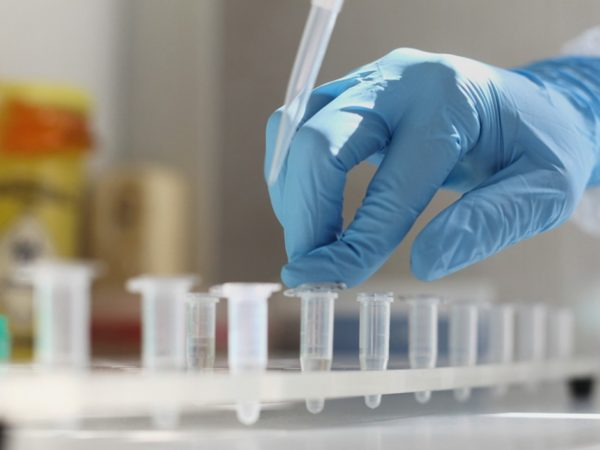 За добу на Дніпропетровщині виявили рекордні 497 випадків коронавірусу (55065)