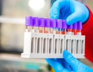 На Дніпропетровщині зафіксували 709 нових випадків коронавірусу