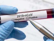 На Дніпропетровщині статистично зареєстровано ще 489 випадків коронавірусу