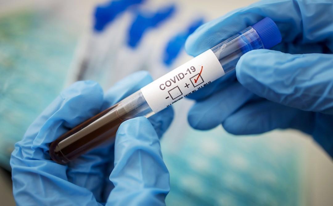 На Дніпропетровщині виявили 317 нових випадків COVID-19