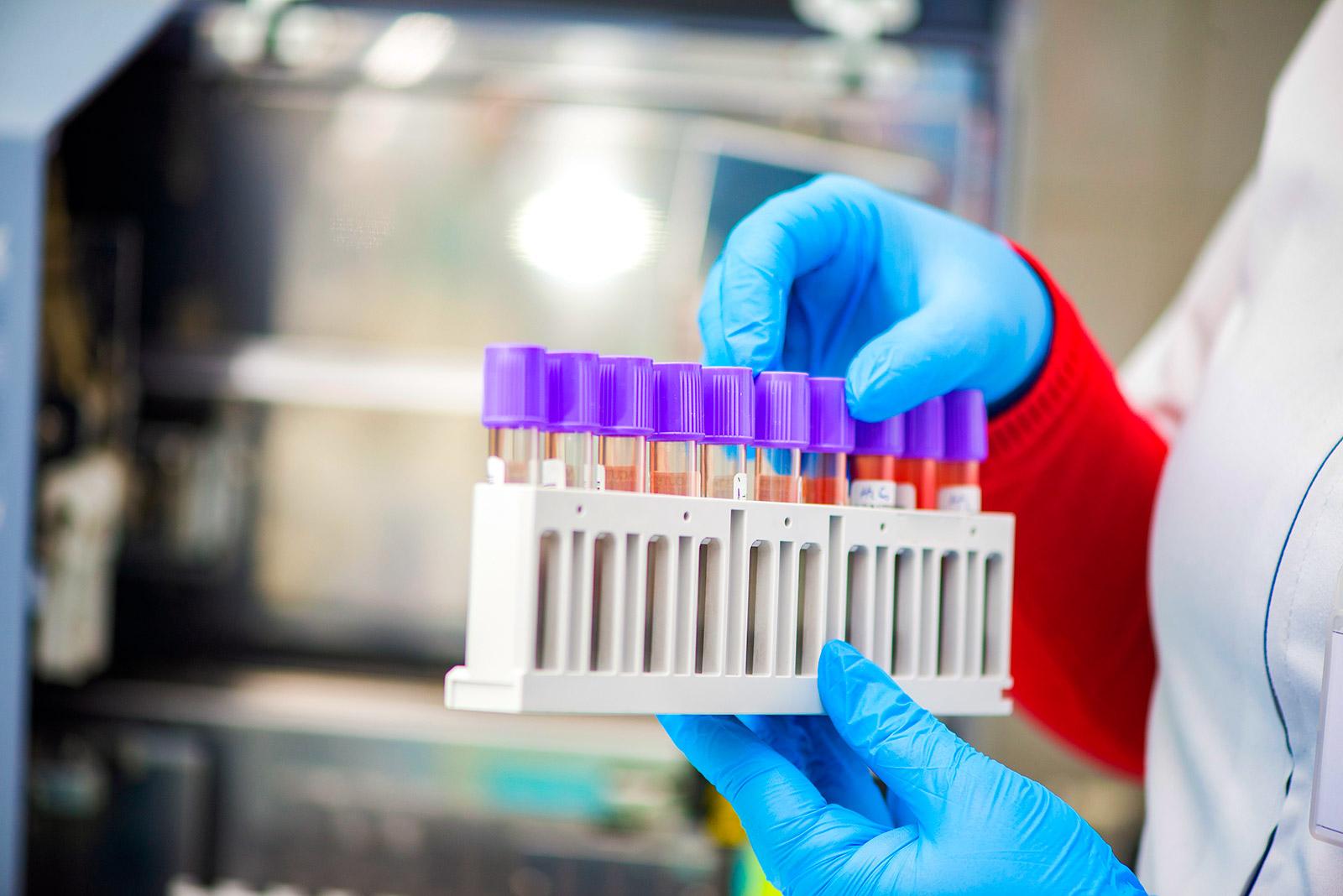 На Дніпропетровщині виявили 267 нових випадків коронавірусу