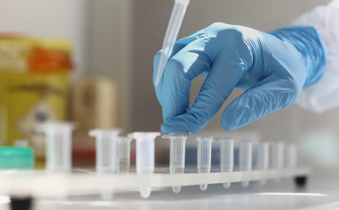 За добу у Дніпропетровській області на коронавірус захворіла 1021 людина. Ще 1464 мешканці одужали. Про це повідомили в департаменті охорони здоров'я облдержадміністрації.