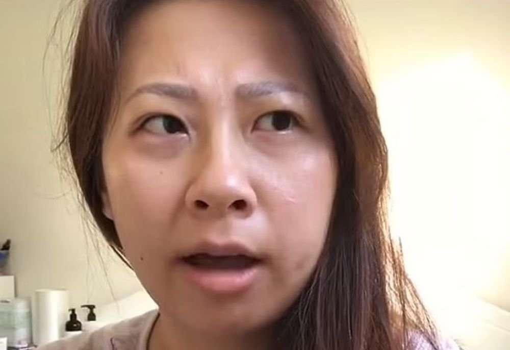 Женщина проснулась после операции с новым акцентом