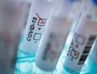 За добу на Дніпропетровщині виявили 34 нові випадки коронавірусу