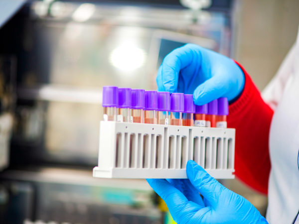 За добу в області виявили 2113 нових випадків коронавірусу (73686)